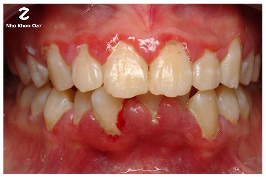 Răng mọc lệch làm chảy máu chân răng