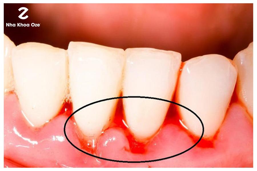 Cách giải quyết hiện tượng chảy máu chân răng