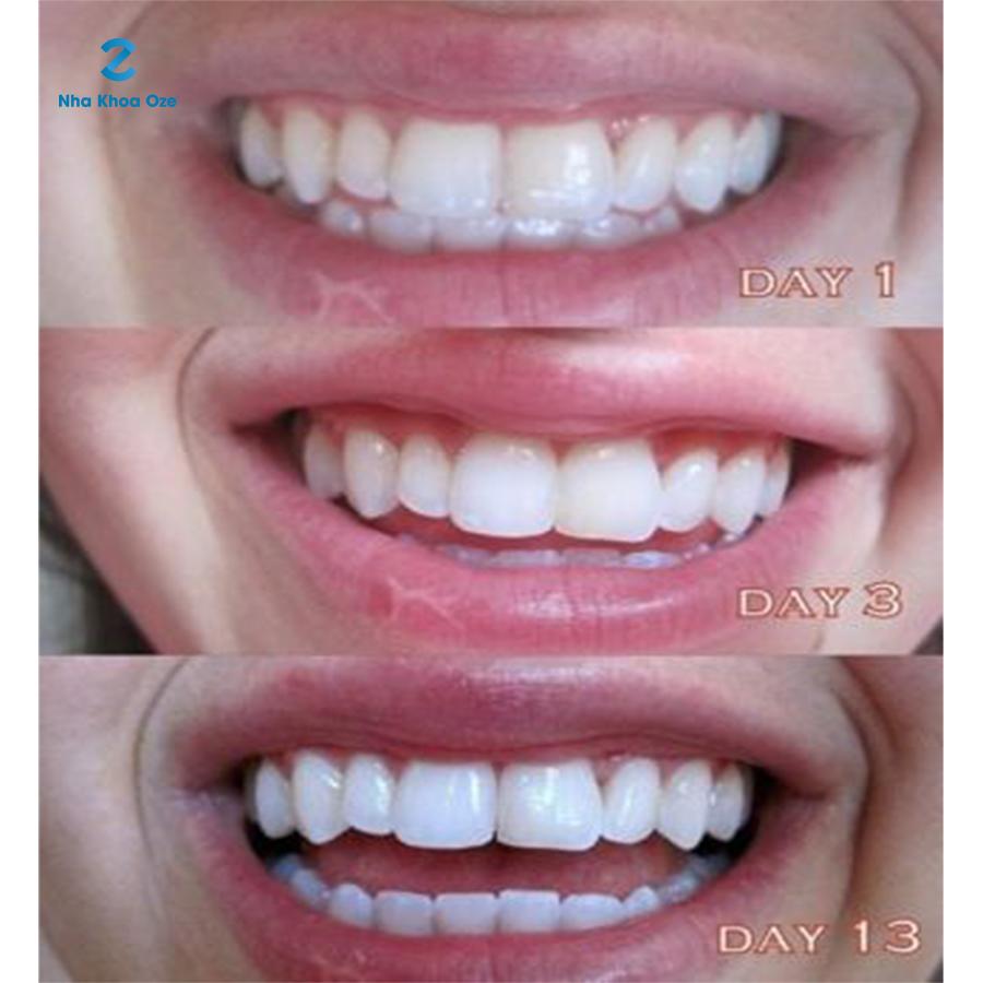 Miếng dán tẩy trắng răng chuyên dụng