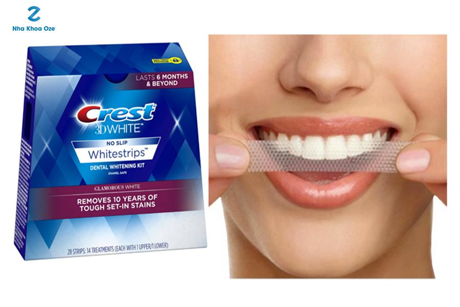 Miếng dán trắng răng là gì?