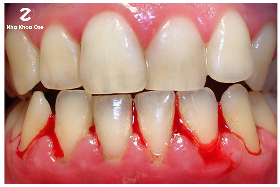 Chảy máu chân răng không chỉ là vấn đề bệnh lý mà còn do thói quen sinh hoạt