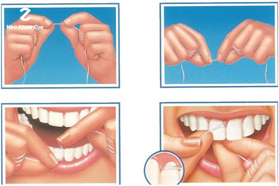 Hình ảnh hướng dẫn cách dùng chỉ nha khoa