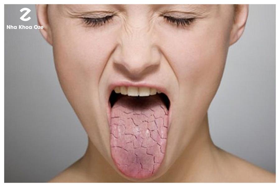 Khô miệng gây nên hôi miệng là tình trạng hay gặp