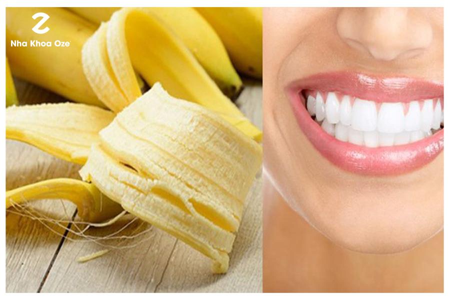 Làm trắng răng đơn giản bằng vỏ chuối tại nhà