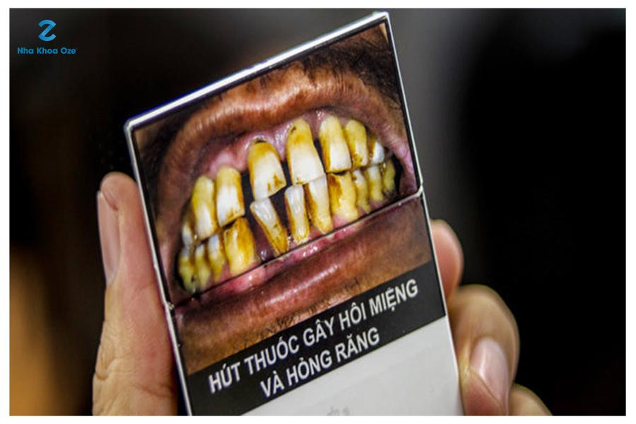 Hút thuốc lá là một trong những nguyên nhân gây ra tình trạng hôi miệng phổ biến