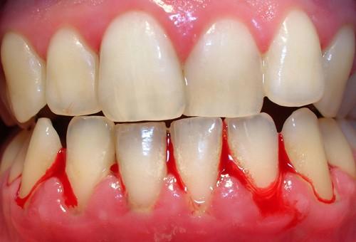 Hút thuốc lá ngoài gây chảy máu răng còn làm răng ố vàng mất thẩm mỹ