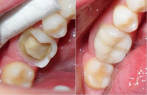 Trám răng là phương pháp trị sâu răng được nhiều người lựa chọn