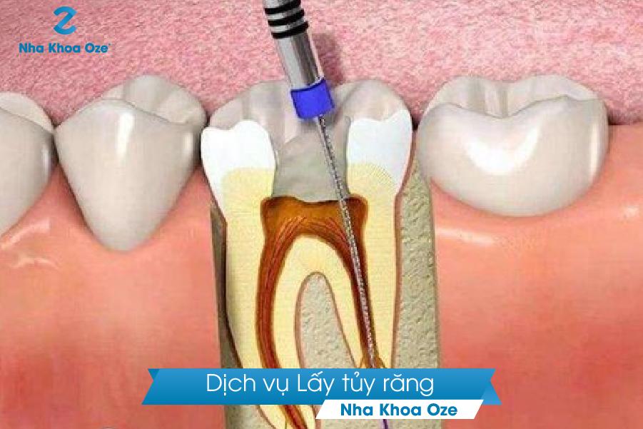 Lấy tủy răng tại Nha khoa Oze