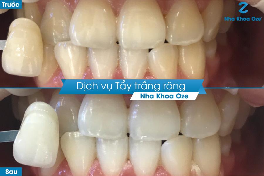 Khách hàng thực hiện dịch vụ tẩy trắng răng tại Nha khoa Oze