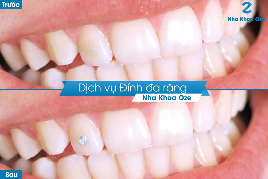 Khách hàng trước và sau khi đính đá răng tại Nha khoa Oze