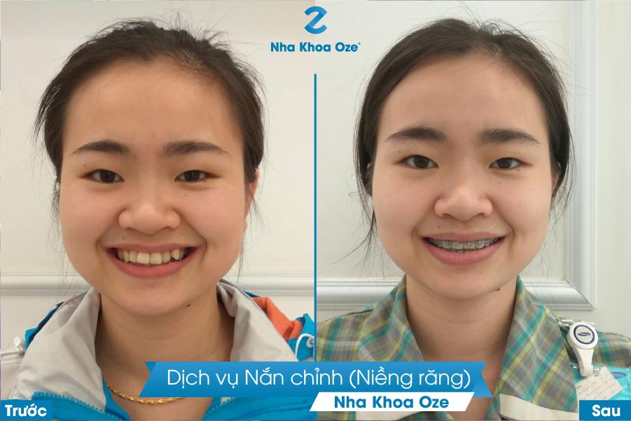 Khách hàng thực hiện dịch vu niềng răng tại Nha khoa Oze