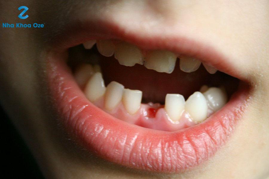 Khi nào trẻ bắt đầu thay răng sữa