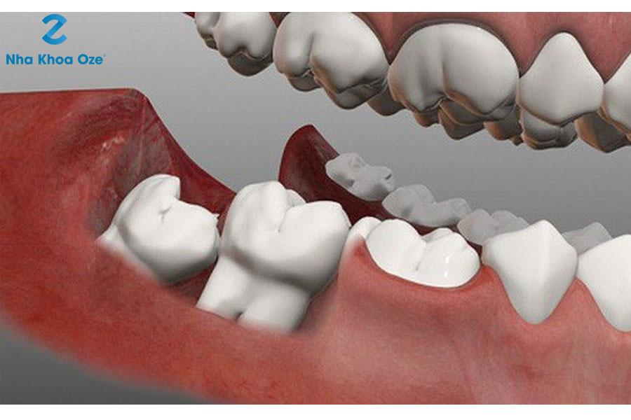 Nhổ bỏ răng khôn có gây đau nhức không