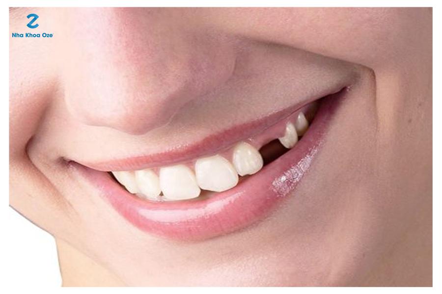 Răng nanh đảm nhiệm chức răng cắn xé nhỏ thức ăn nên nếu bị mất đi sẽ rất nguy hiểm