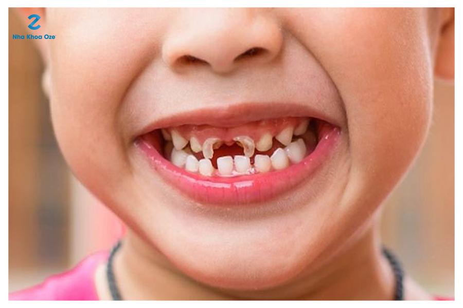 Sún răng là bệnh lý răng miệng ở trẻ rất dễ mắc phải