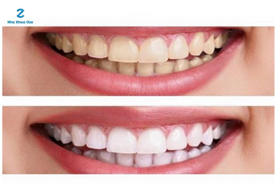 Răng ố vàng và răng trắng