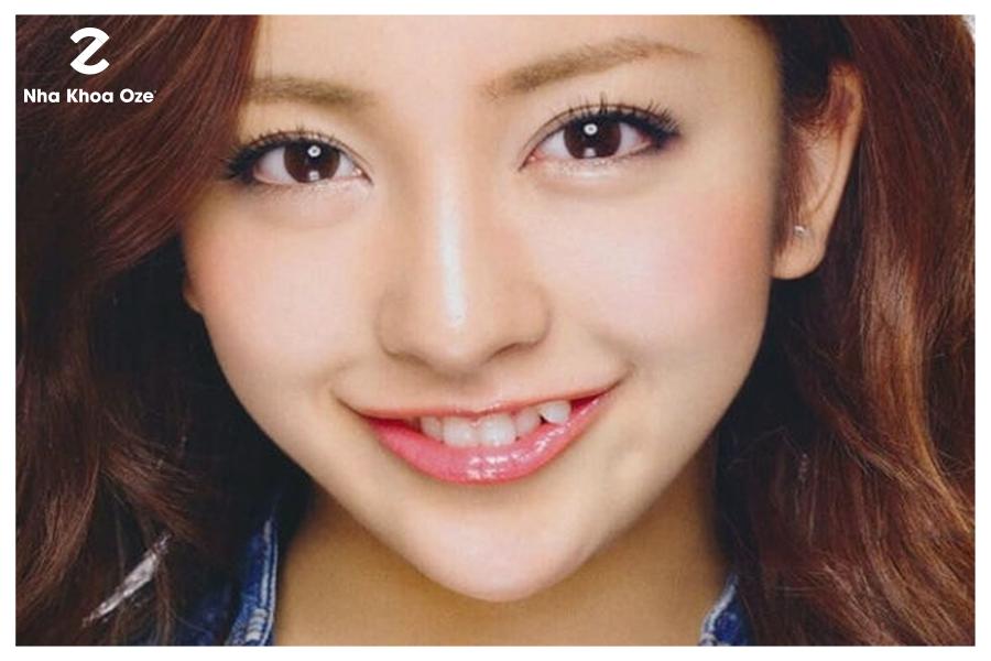 Răng nanh mọc chếch lên được gọi là răng khểnh