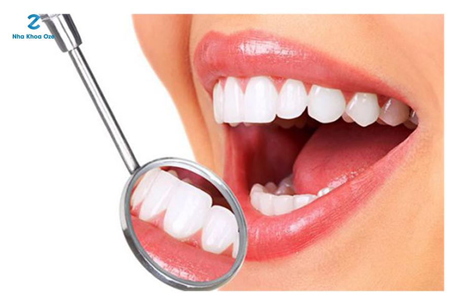 Bọc răng sứ mất bao lâu thường dựa vào nhiều yếu tố