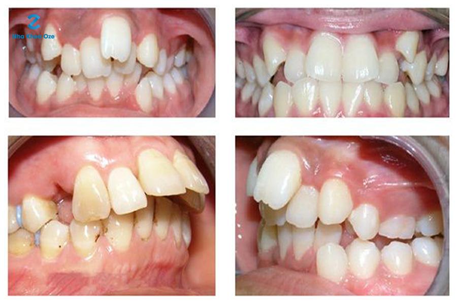 Răng mọc lệch có phải là vấn đề nghiêm trọng? Giải quyết có quá khó không?