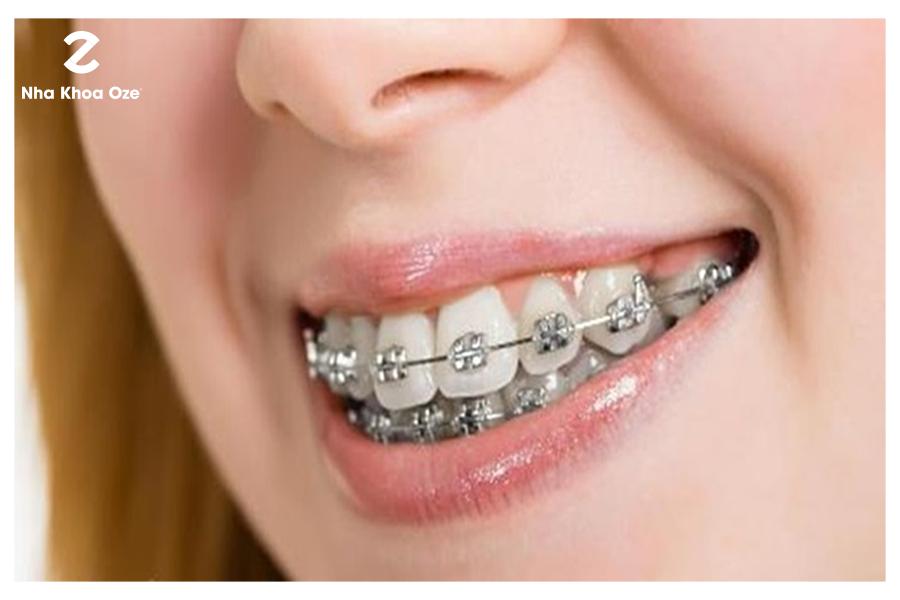 Những điều cần tìm hiểu kỹ càng về răng vẩu