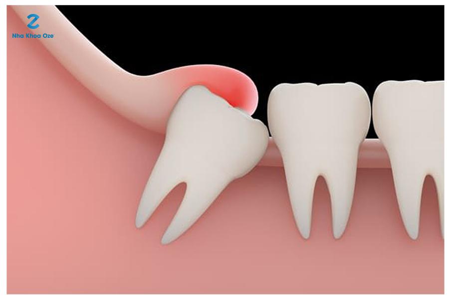 Răng khôn mọc lệch gây sưng tấy