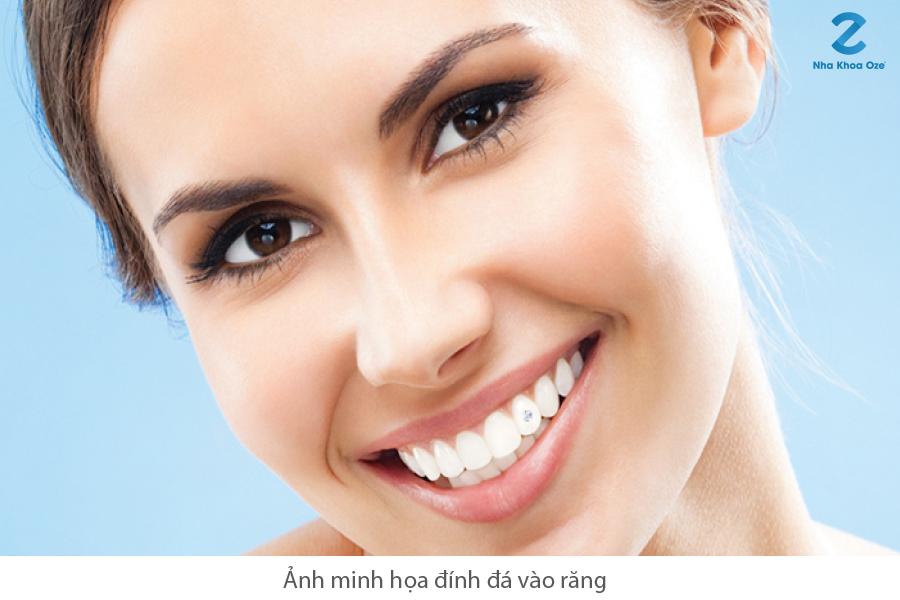 Đính đá vào răng có hại không? 4 điều cần biết về đính đá răng