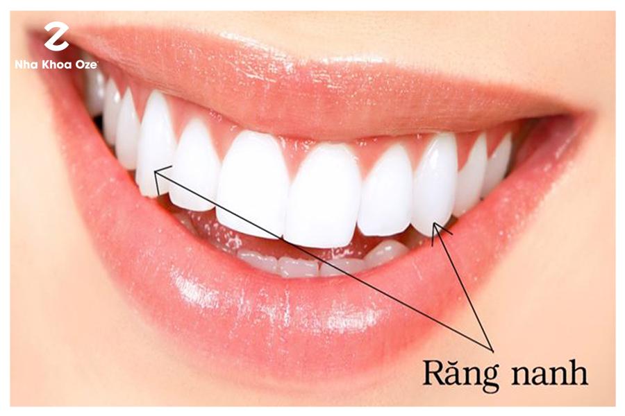 Vị trí mọc của răng nanh hàm trên