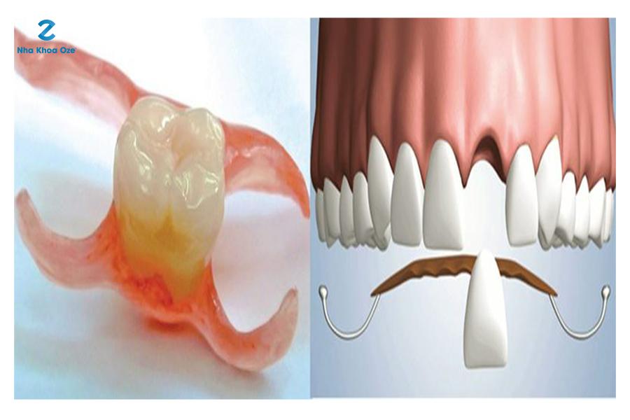Phương pháp cấy ghép răng nanh giả bằng hàm tháo lắp