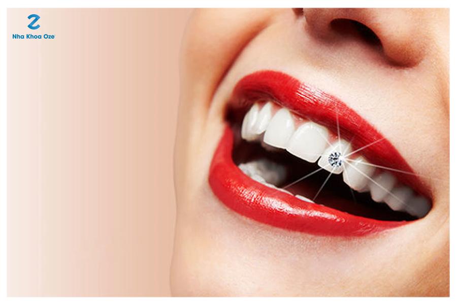 Đính đá lên răng là gì?