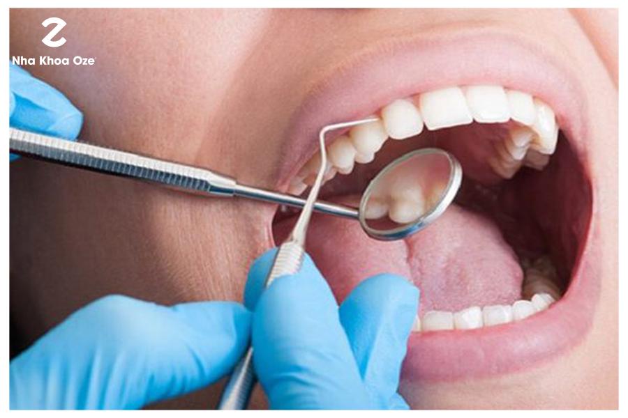 Cần hết sức khéo léo khi lấy cao răng để tránh làm tổn hại đến nướu, răng