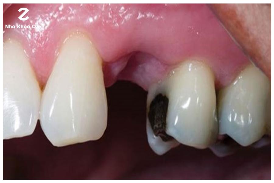 Những bệnh lý về răng cũng là nguyên nhân dẫn đến gãy răng