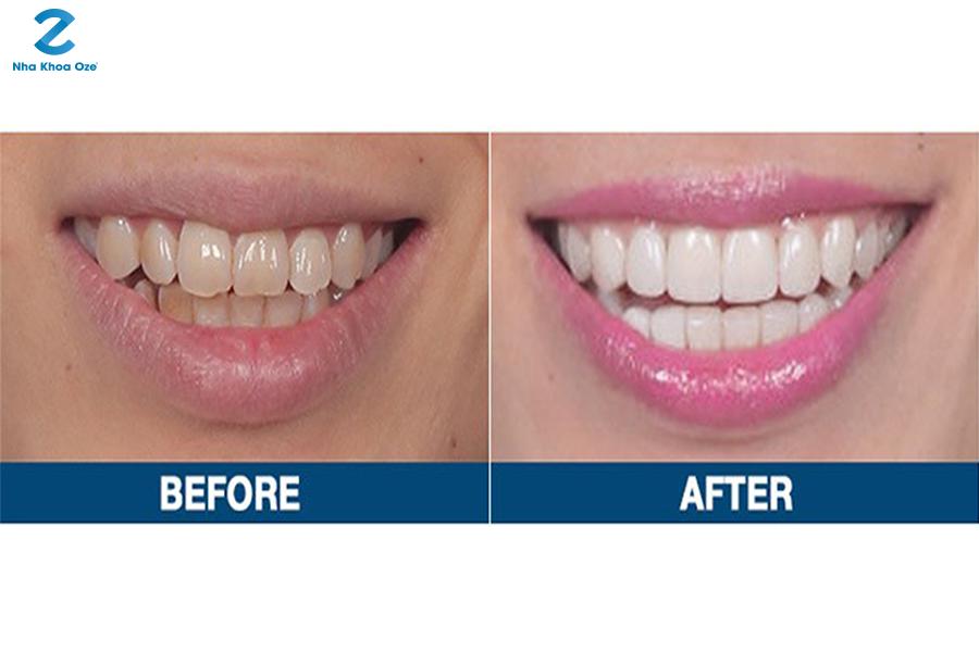 Bọc răng sứ là phương pháp chỉnh nha giúp mang lại hiệu quả cao