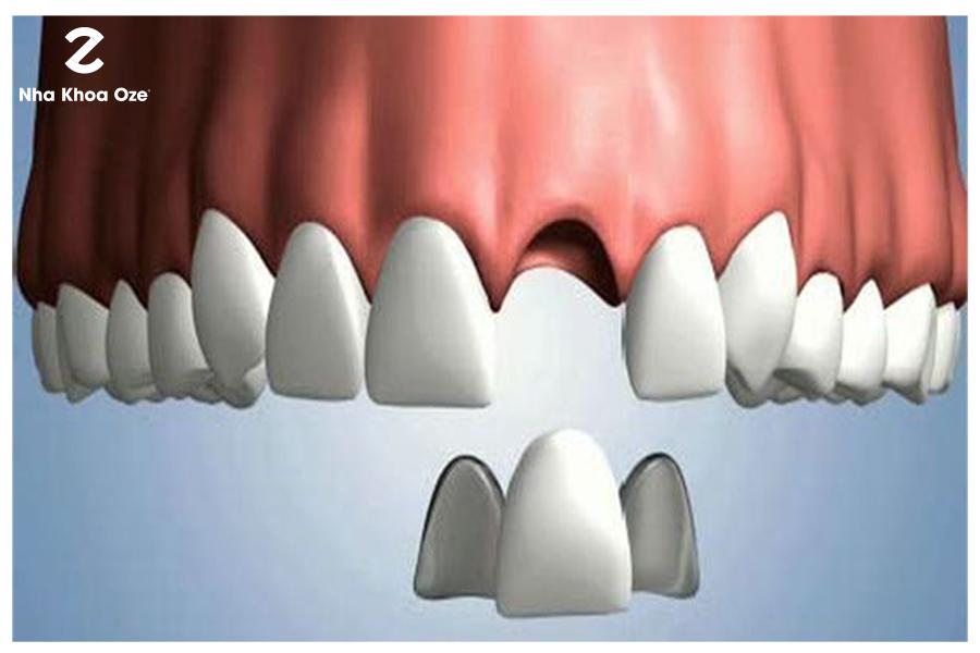 Hoàn toàn có thể tháo răng sứ đã lắp