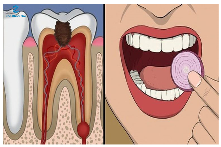 Một lát hành tây chính là những gì bạn cần để giảm đau răng