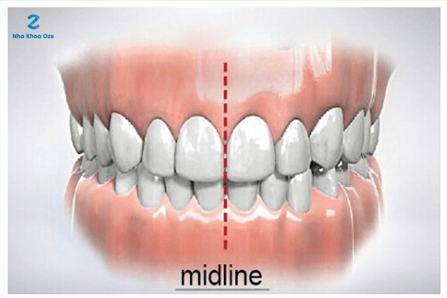 Khớp cắn chính là mối tương quan giữa hàm trên và hàm dưới