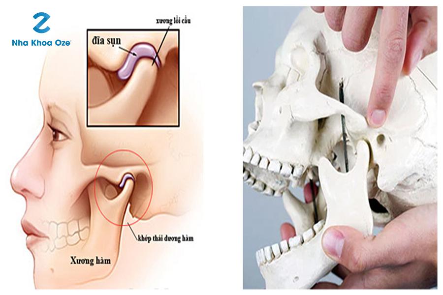 Viêm khớp thái dương hàm nếu không điều trị có thể gây đau nhức, ảnh hưởng đến việc ăn nhai, sức khỏe suy giảm