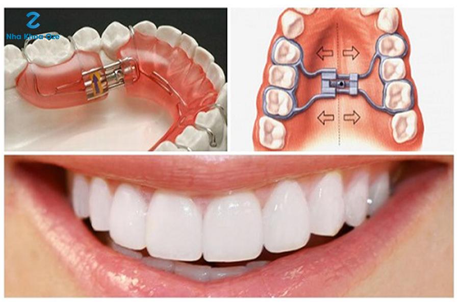 Chỉnh nha là phương pháp giúp mang lại hàm răng đều và đẹp