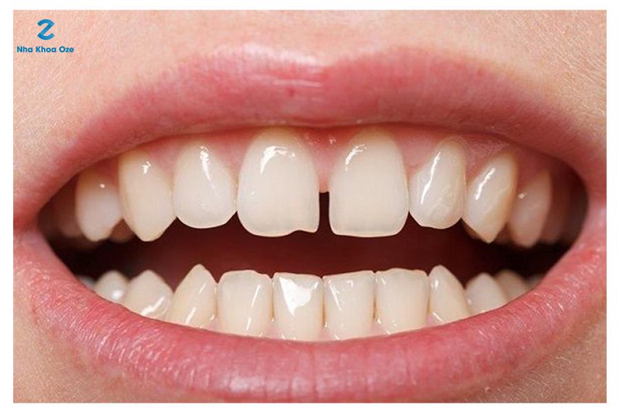 Tình trạng răng thưa