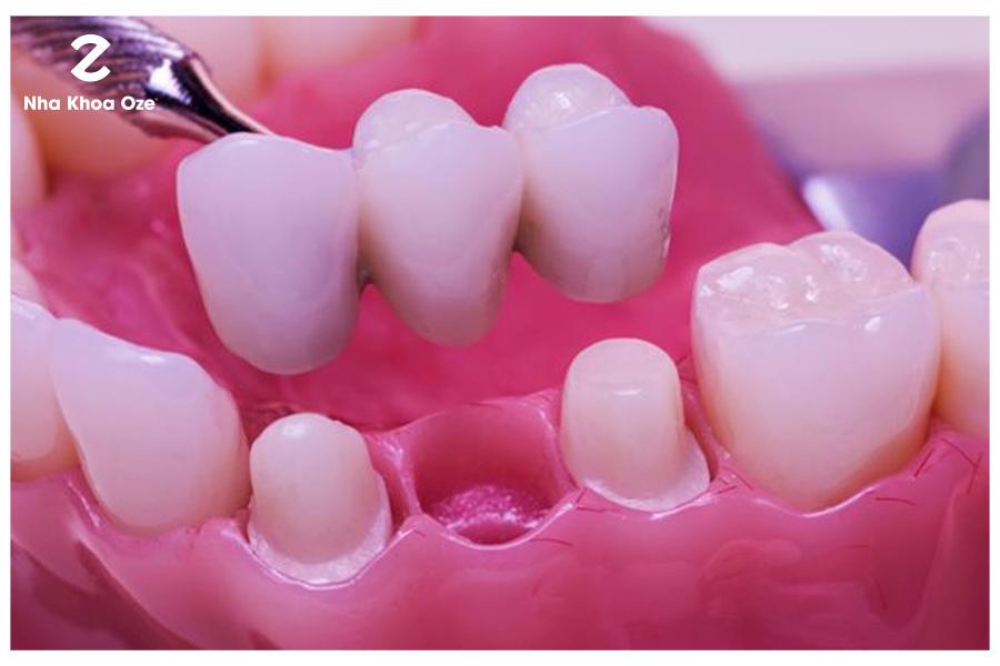 Phương pháp bọc cầu răng sứ
