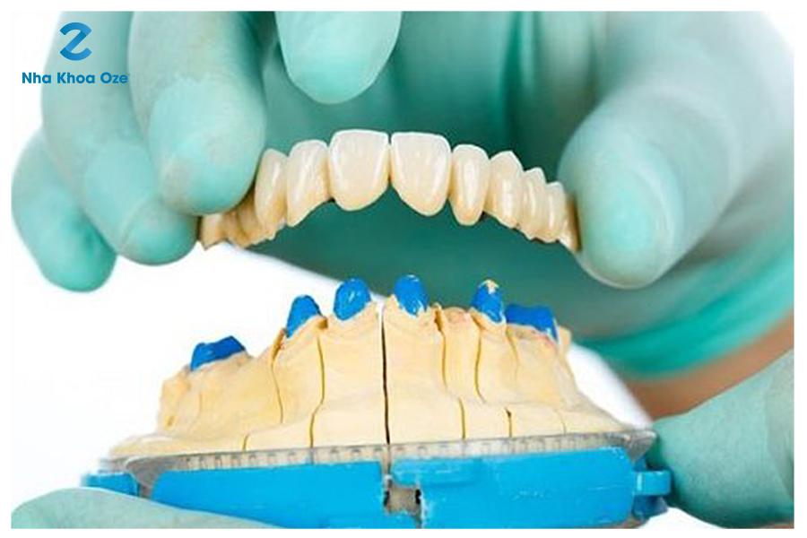Tháo răng sứ rất đơn giản và an toàn