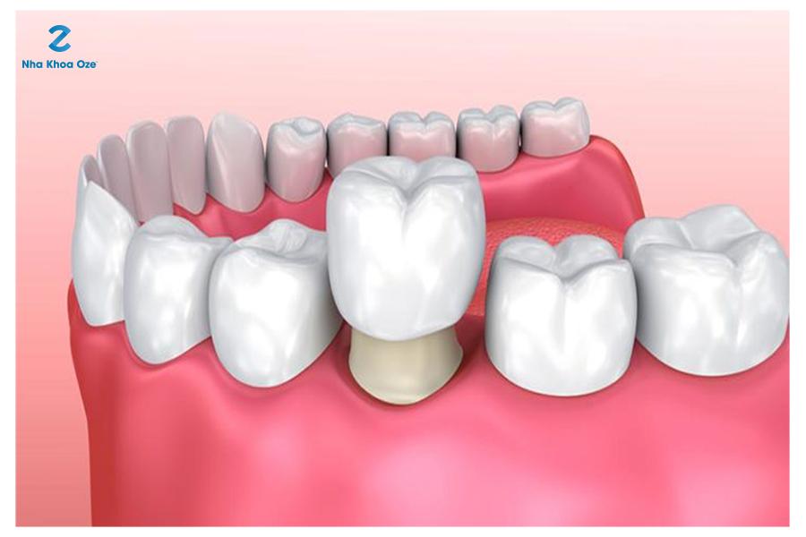 Tuổi thọ của răng tùy thuộc vào nhiều yếu tố