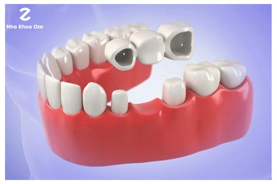 Bác sĩ phải phục hình tạm trong thời gian chờ đợi chế tác cầu răng sứ
