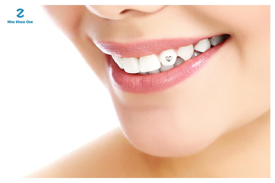 Đính đá vào răng - tạo điểm nhấn cho nụ cười xinh