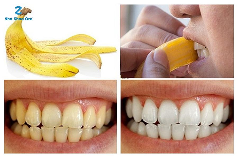 ự lấy cao răng bằng vỏ chuối tại nhà đơn giản