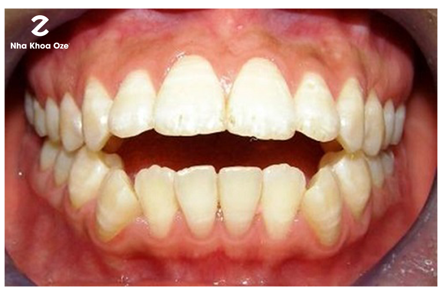 Vẩu cả răng và hàm là nặng nhất, cần được chữa trị kịp thời