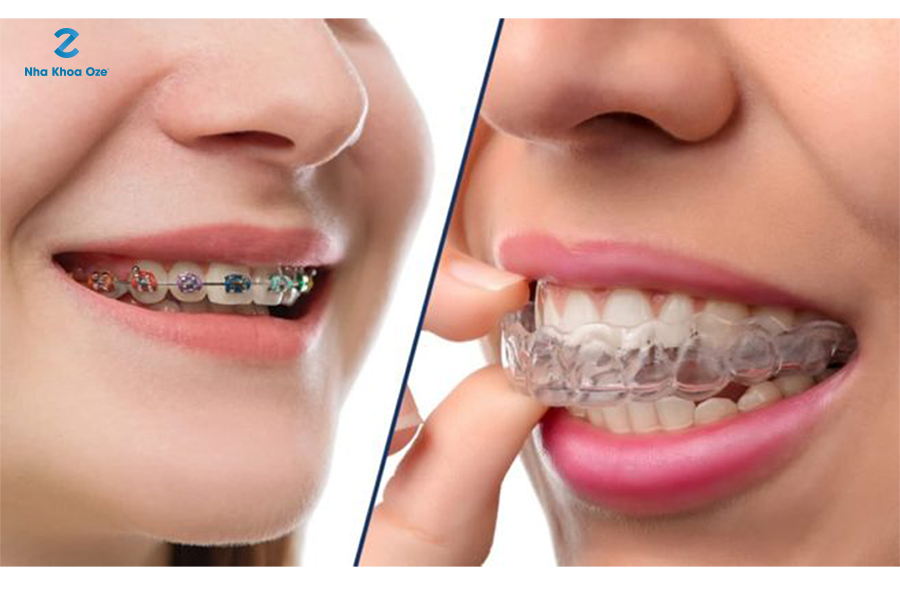 Niềng răng để kéo lại vị trí đúng của răng