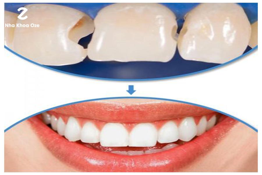 Hàn răng composite là phương pháp đơn giản nhất với thời gian ngắn giúp khắc phục tốt tình trạng răng thưa