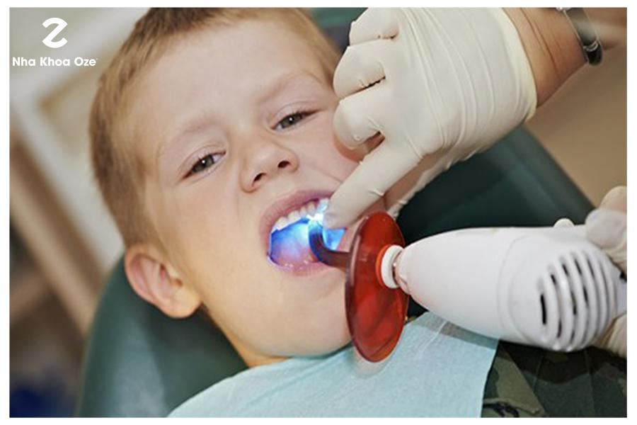 Không phải đứa trẻ nào cũng phù hợp với việc hàn hoặc trám răng
