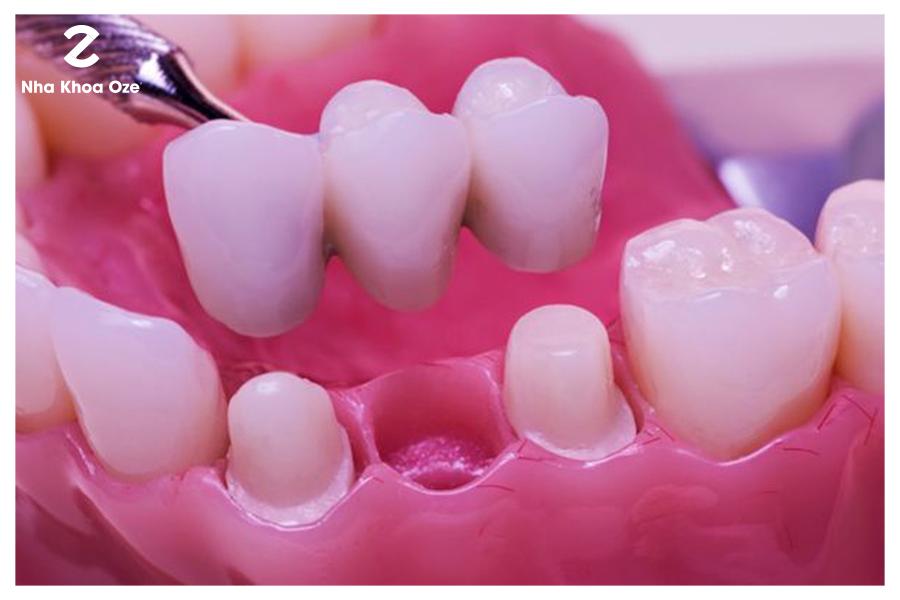 Nếu cầu răng sứ hở, rất dễ dẫn đến những vấn đề về răng miệng