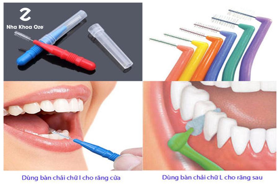 Bàn chải kẽ được sử dụng chỉ một lần để làm sạch răng hiệu quả hơn